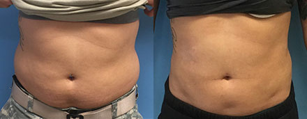 Liposuction North Carolina