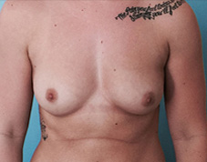 Breast Augmentation Before & After Patient #1402