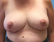 Breast Lift Before & After Patient #1416
