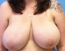 Breast Reduction Before & After Patient #1423