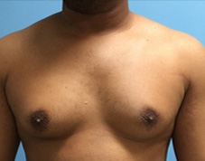 Breast Before & After Patient #1433
