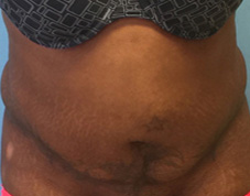 Liposuction Before & After Patient #1440