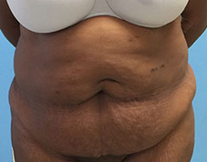 Tummy Tuck Before & After Patient #1455