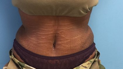 Tummy Tuck Before & After Patient #1996