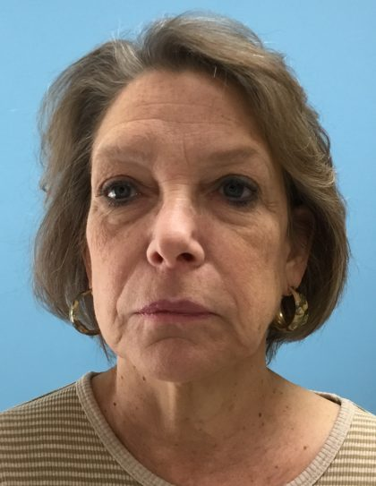 Facelift Before & After Patient #2016