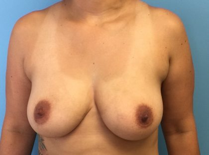 Breast Augmentation Before & After Patient #1987