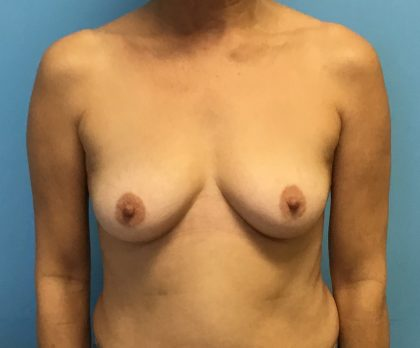 Breast Augmentation Before & After Patient #2063