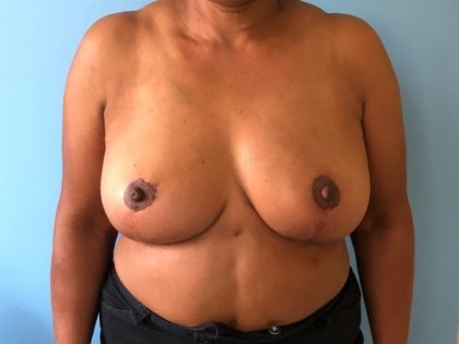 Breast Lift Before & After Patient #2920