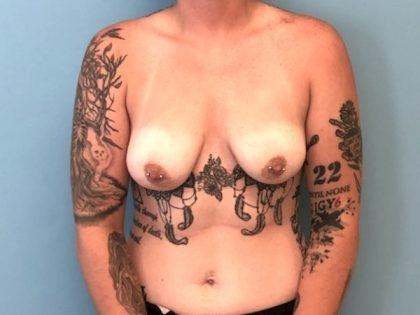 Breast Augmentation Before & After Patient #2938