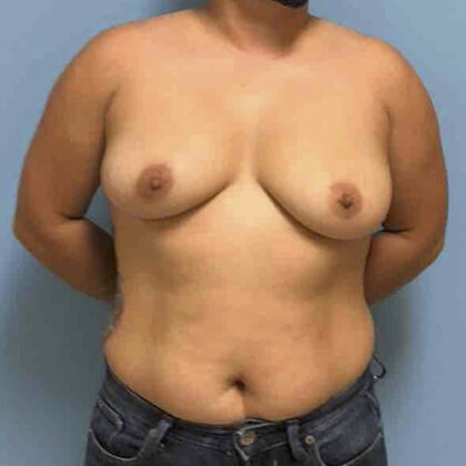 Breast Augmentation Before & After Patient #3445