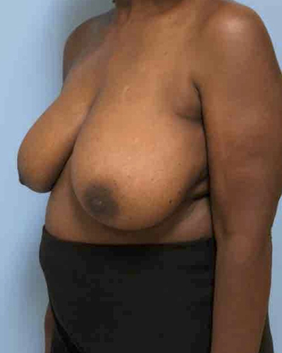 Breast Lift Before & After Patient #3457