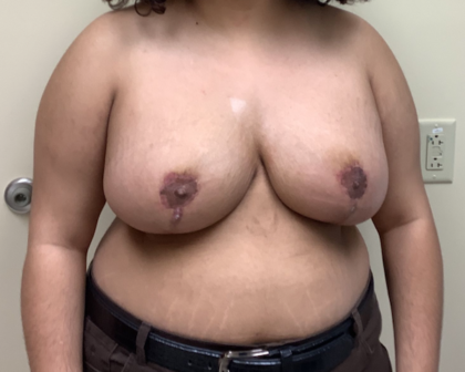 Breast Lift Before & After Patient #3511