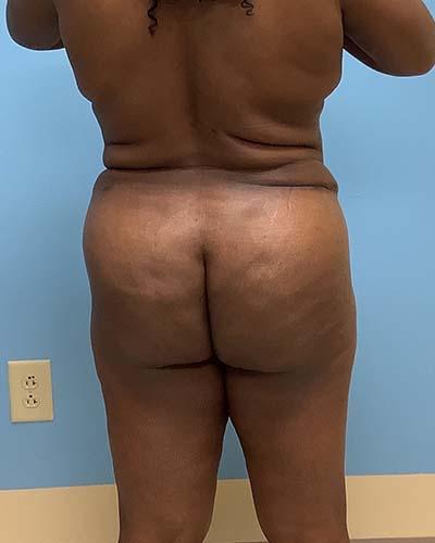 Brazilian Butt Lift Before & After Patient #3595